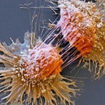 ¿Qué es el síndrome de Lynch, la rara condición genética que puede ser la causa del cáncer hereditario en tu familia?