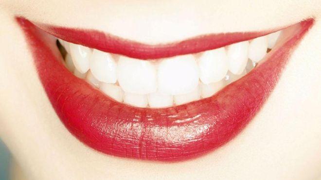 Por qué tener los dientes blancos no significa necesariamente que estén sanos