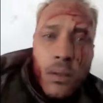 [VIDEO] Policía venezolana detienen a Óscar Pérez