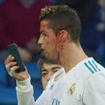[VIDEO] Cristiano Ronaldo sufre herida en su cara luego de una patada y pide su celular para verse el corte