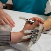 Crean método para restaurar sensación de movimiento en pacientes amputados