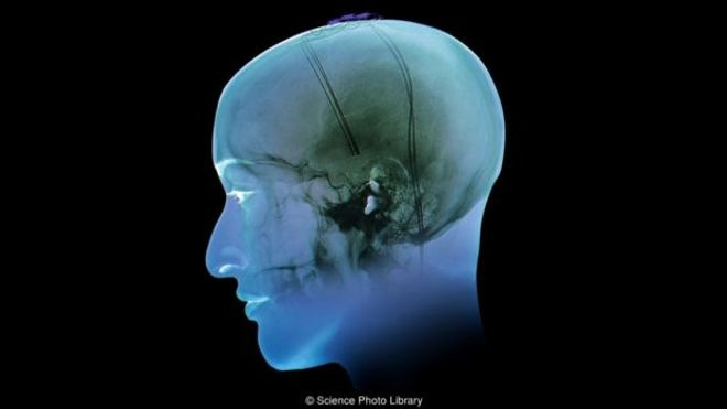 Cómo unos electrodos en el cerebro pueden ayudar a tratar la obesidad y la depresión