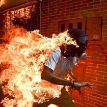 El fotoperiodista venezolano Ronaldo Schemidt gana el World Press Photo por imagen de joven en llamas