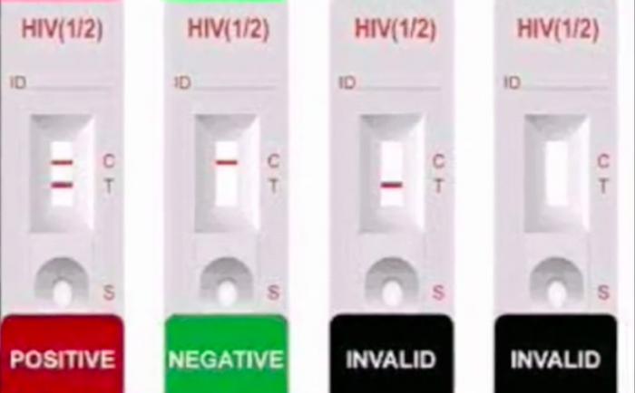Exitoso inicio de campaña de detección precoz del VIH