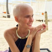 ¿Realmente importa estar pelada?: Javiera Suárez enfrenta tratamiento para el cáncer