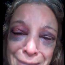Mujer se niega a tener relaciones sexuales con un hombre y él la golpea con un ladrillo en la cara