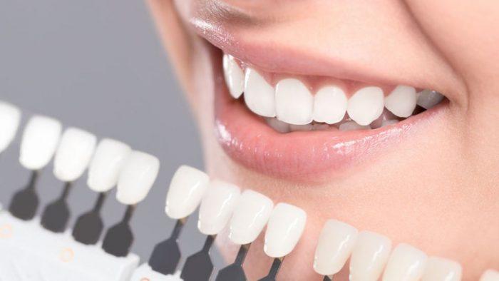"""Los consejos para una """"sonrisa divina"""" del Doctor Bill, el dentista de los famosos de Hollywood"""