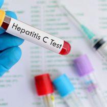 Hepatitis C: la enfermedad ignorada, oculta y olvidada