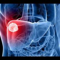 Día mundial de la hepatitis: desafíos y diagnósticos del VHC en Chile