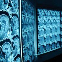 Neurociencia y minería: científicos estudiarán la relación entre máquinas y cerebro humano