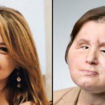 El histórico trasplante de rostro que le dio una segunda oportunidad a una joven que intentó suicidarse