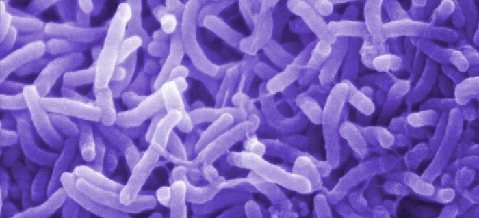 La crisis de los 27 años y el cólera