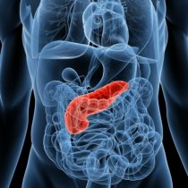 Los riesgos de la pancreatitis por alcohol