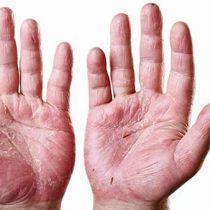 Artritis Psoriásica: una enfermedad que si no se controla puede llegar a ser invalidante