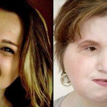 Katie Stubblefield, la joven que recibió un trasplante de cara después de intentar suicidarse