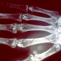 Cómo funcionan los microchips que se implantan bajo la piel y permiten pagar sin efectivo ni tarjeta