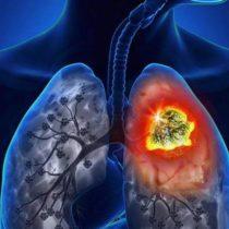 Cáncer de pulmón mata a más de tres mil chilenos al año, pese a disminución del consumo de tabaco