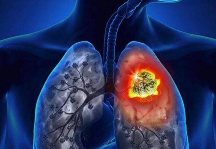 Cáncer de pulmón: cómo identificar esta patología GES