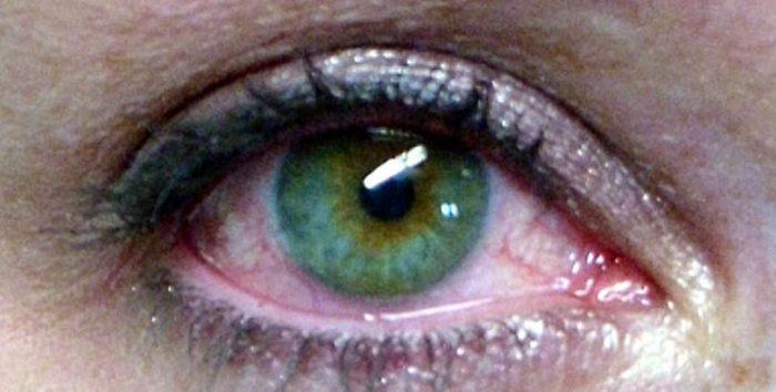 Cuarentena aumenta consultas por exceso de uso de pantallas: ¿se puede proteger la vista ante el exceso de luz?