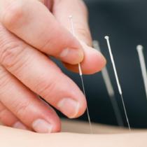 La acupuntura se abre paso como complemento para la salud bucal y dolor facial