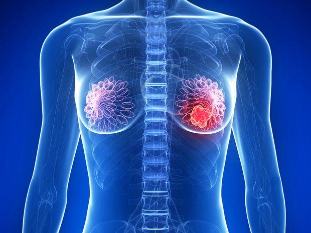 Estudio podría ayudar a detener metástasis en mujeres con cáncer de mama