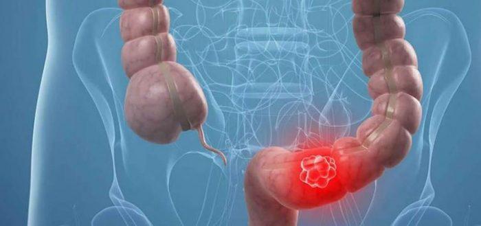 Cáncer colorrectal supera al digestivo en ranking chileno