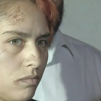 Nuevo caso de ataque transfóbico: le dibujaron símbolos nazis con un cuchillo a joven en Pedro Aguirre Cerda