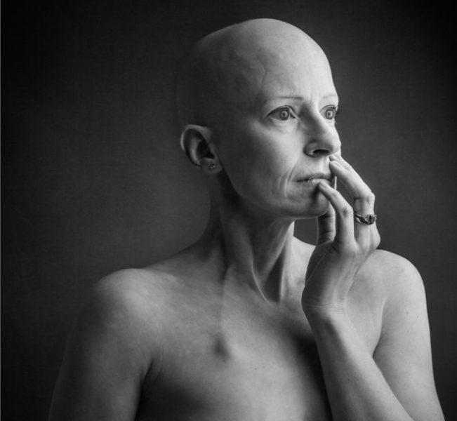 """""""Como muchas mujeres, no me revisé los senos"""": la cirujana que operaba cáncer de mama y lo tuvo"""