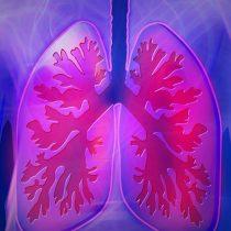 ¿Tiene tos y siente falta de aire y dificultad para respirar? Puede ser fibrosis pulmonar idiopática