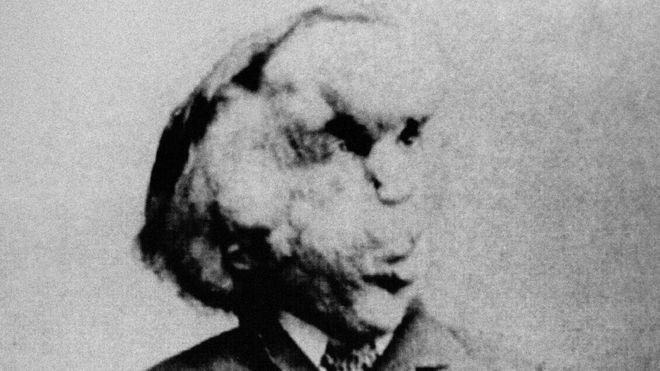"""La biógrafa que asegura haber encontrado la tumba del legendario """"Hombre Elefante"""" casi 130 años después de su muerte"""