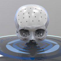 Nuevo biomaterial para implantes que compite contra el titanio y la silicona llegó a Chile