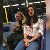 Detienen a un quinto adolescente tras ataque lesbofóbico en Londres