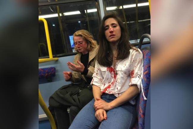 Ataque lesbofóbico: la brutal golpiza que recibió una pareja de lesbianas en Londres