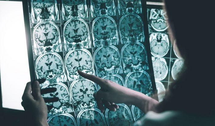 Científicos chilenos desarrollan tecnología que revolucionará el tratamiento de la esclerosis múltiple en el mundo