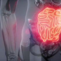 Cánceres digestivos: aumenta la incidencia ante falta de atención temprana