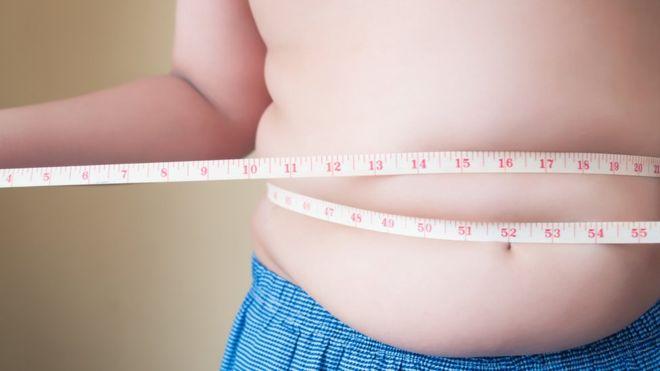 Día Mundial contra la Obesidad: 7 mitos que afectan nuestra