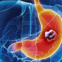 Estudio demuestra positivo uso de inmunoterapia en tratamiento de cáncer gástrico