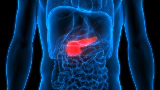 Cáncer de páncreas: la combinación de 2 fármacos que