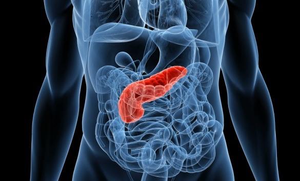 Día Mundial contra el Cáncer de Páncreas: una enfermedad en aumento