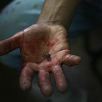 Víctimas de lesiones oculares durante el estallido social presentan más de 40 querellas criminales contra Piñera