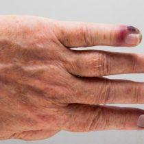 Septicemia, la enfermedad que mata anualmente a más personas que el cáncer en el mundo