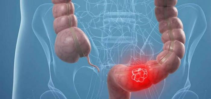 Dosis regulares de aspirina podrían evitar cáncer colorrectal