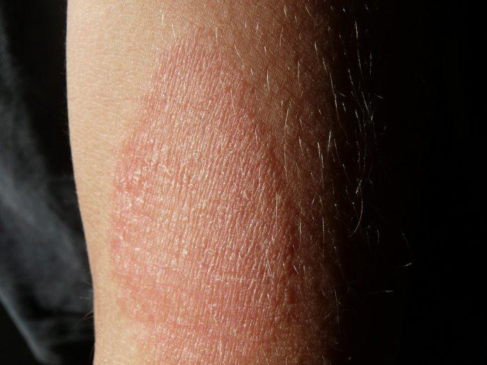 ¿Cómo es vivir con dermatitis atópica en Chile?