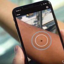 """""""Rendimiento pobre y variable"""": advierten sobre el uso de apps que dicen detectar el cáncer de piel"""