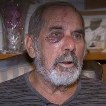 """Se resquebraja defensa cerrada del Gobierno a Carabineros: Larraín habla de agresión """"brutal"""" y Blumel reconoce """"uso excesivo"""" de fuerza"""