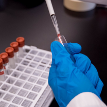 Lista de espera para la vacuna de la influenza crece treinta veces en comparación al año 2019