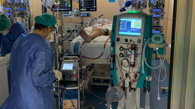 Coronavirus: respiración extracorpórea, la extraordinaria tecnología que ayuda a salvar vidas en la epidemia de covid-19