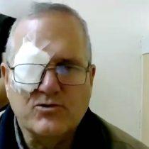 Reformalizan a John Cobin por disparos en Reñaca: suma dos nuevos delitos
