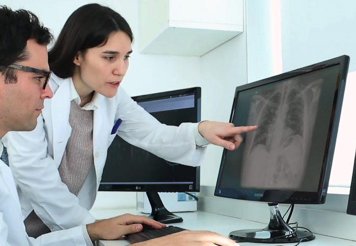 Herramienta gratuita utiliza Inteligencia Artificial para el diagnóstico de Covid-19 en radiografías de tórax