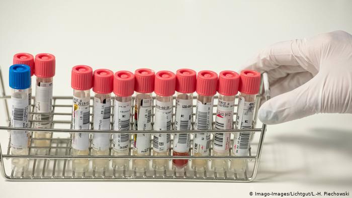 No son perfectos: informe revela que Alemania subestimó la peligrosidad del SARS-CoV-2